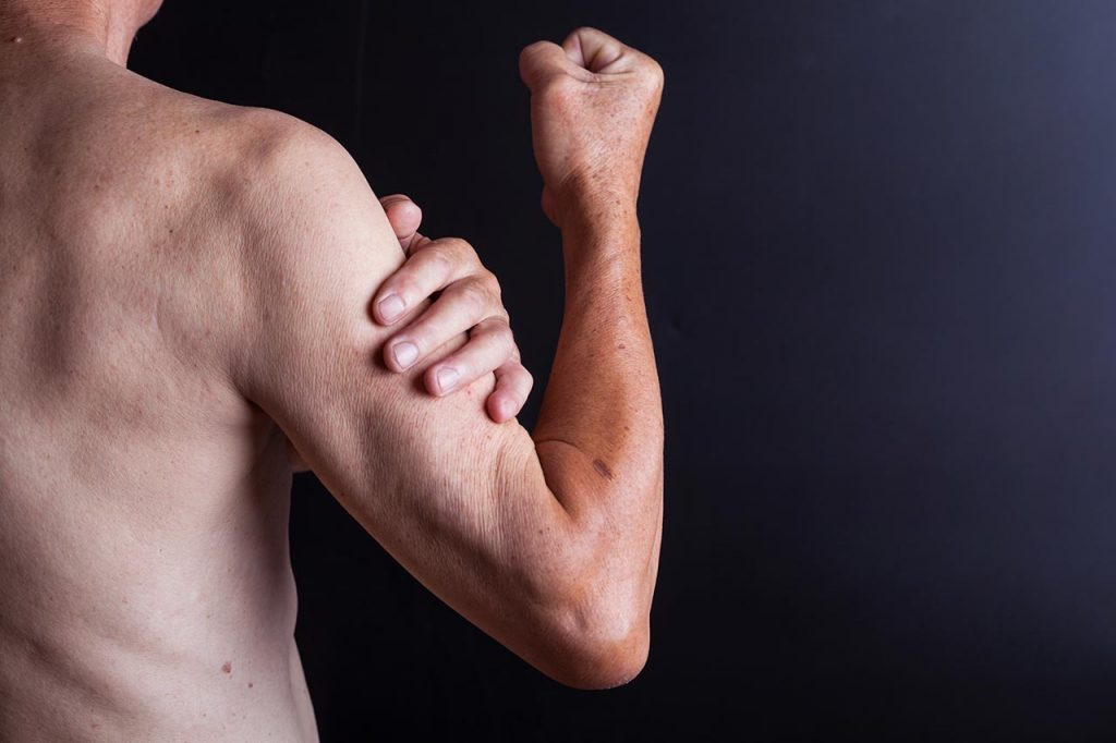 muscle atrophy inflammation